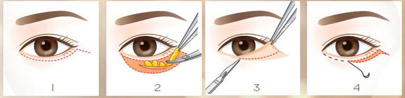 Quy trình phẫu thuật cắt da thừa mí dưới và lấy mỡ