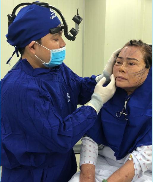 Căng da mặt bằng chỉ Nano Collagen