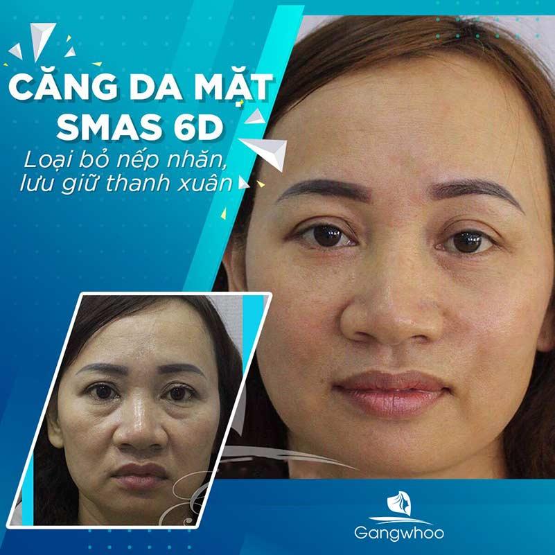 Khách hàng căng da mặt Smas 6D