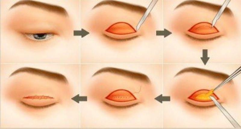 Lấy Mỡ Mí Mắt Trên Bằng Nội Soi