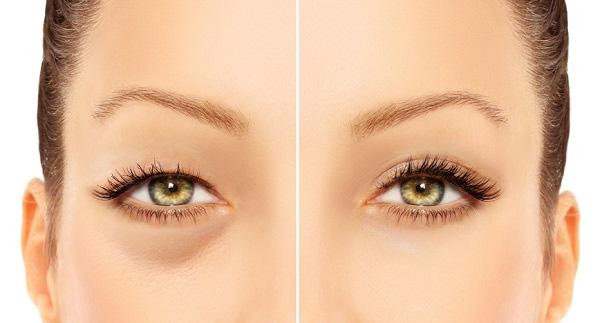 Lấy Mỡ Mắt Nội Soi