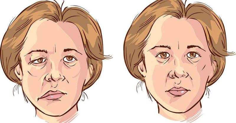 Lấy Lại Vẻ Tự Tin Cho Người Phụ Nữ 15 Năm Bị Liệt Nửa Mặt