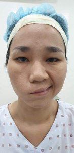 Khách hàng trước phẫu thuật