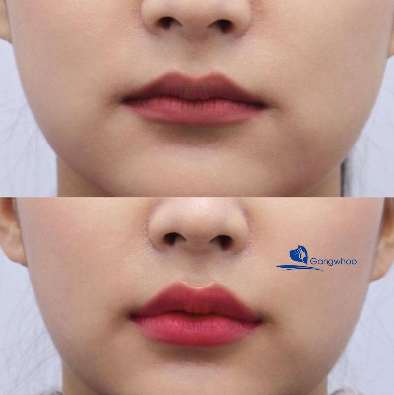 Hình ảnh khách hàng trước và sau Phun môi Pink Smile