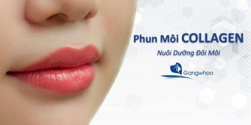 Công nghệ phun môi Collagen hiện đại