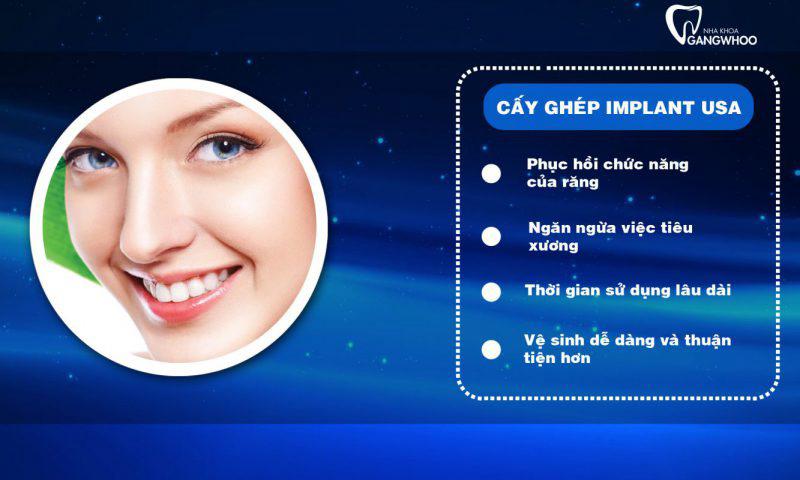 Cấy Ghép Implant Giúp Răng Đều, Đẹp Tự Nhiên Khi Cười