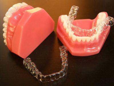 Chỉnh nha - niềng răng 2