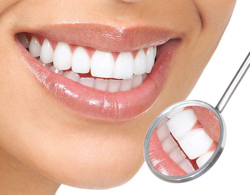 Bọc răng sứ 1