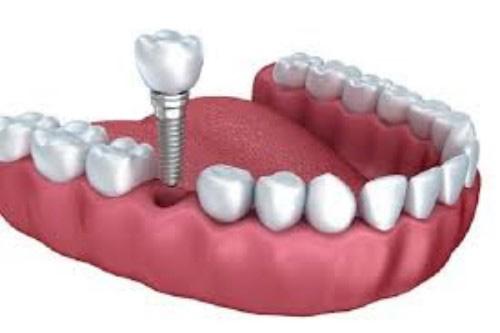 Cấy Ghép Implant Giúp Răng Đều, Đẹp Tự Nhiên Khi Cười 1