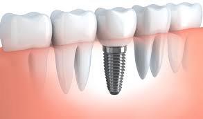 Cấy ghép Implant 3