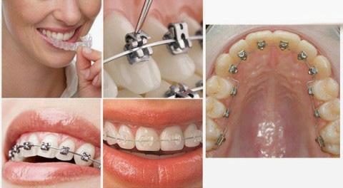 Chỉnh nha - niềng răng 1