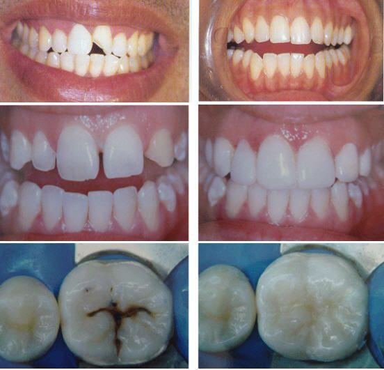 Trám Răng Cải Thiện Khuyết Điểm Răng Sứt Mẻ, Không Đều Nhau 1