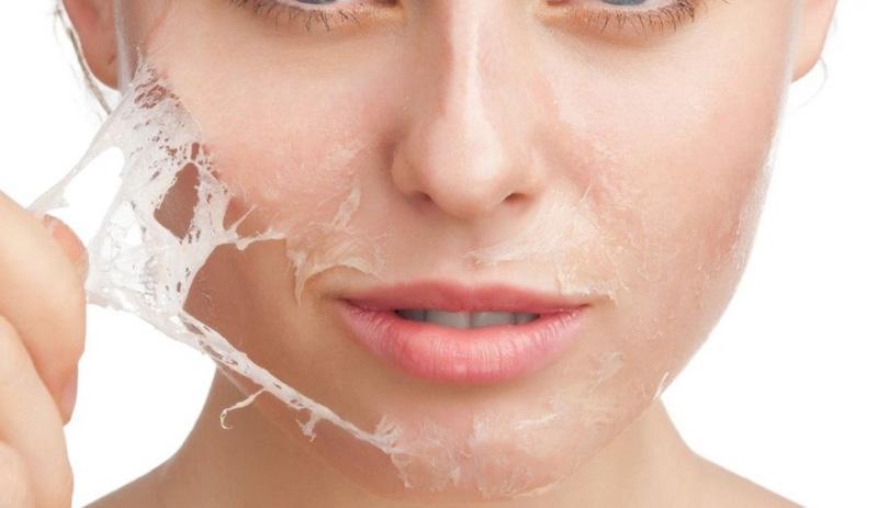 Có nên lột da mặt bằng hóa chất không?