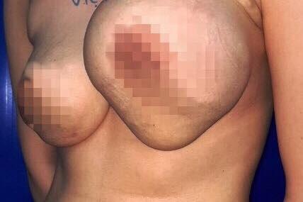 Ngực của chị T. có dấu hiệu lạ, cứng chắc và gồ ghề
