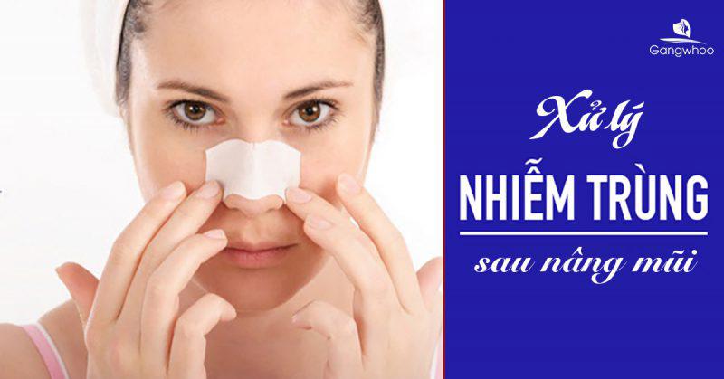Xử lý nhiễm trùng sau nâng mũi