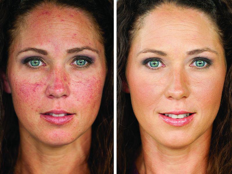Để không bị ung da do ô nhiễm không khí