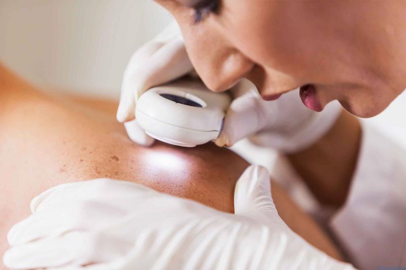 Điều trị kịp thời các tổn thương về da