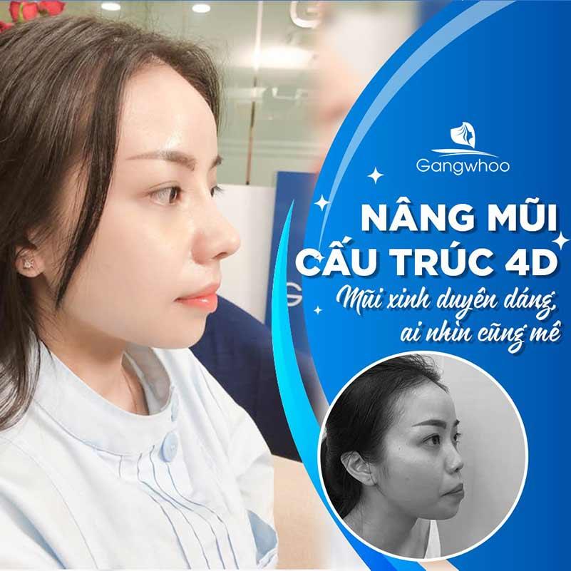 Khách hàng nâng mũi cấu trúc 4D