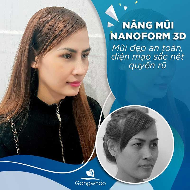 Khách hàng nâng mũi Nanoform 3D