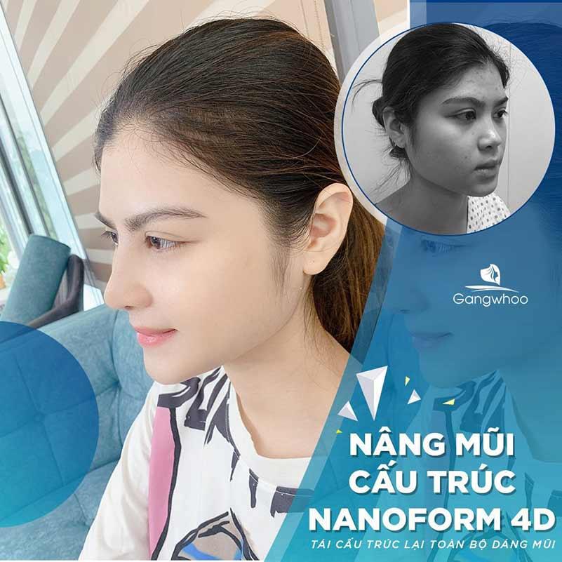 Khách hàng nâng mũi Nanoform 4D
