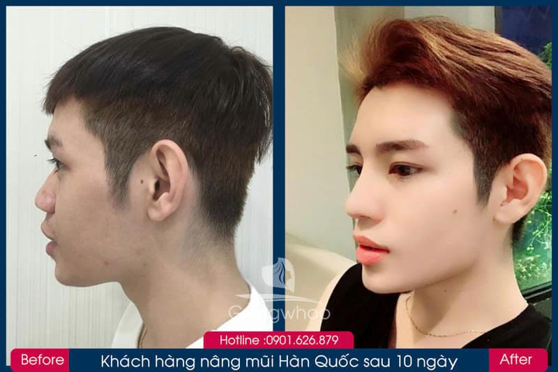 Hình ảnh khách hàng thẩm mỹ mũi tại Gangwhoo 22