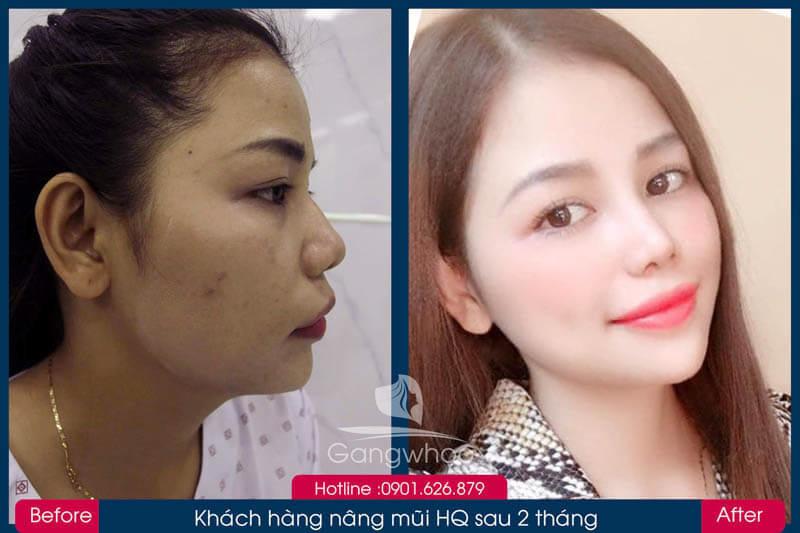 Hình ảnh khách hàng thẩm mỹ mũi tại Gangwhoo 31