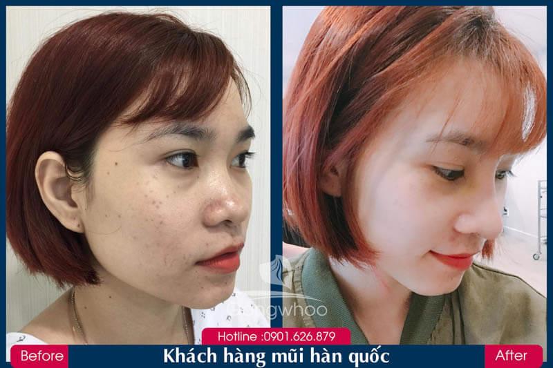 Hình ảnh khách hàng thẩm mỹ mũi tại Gangwhoo 33