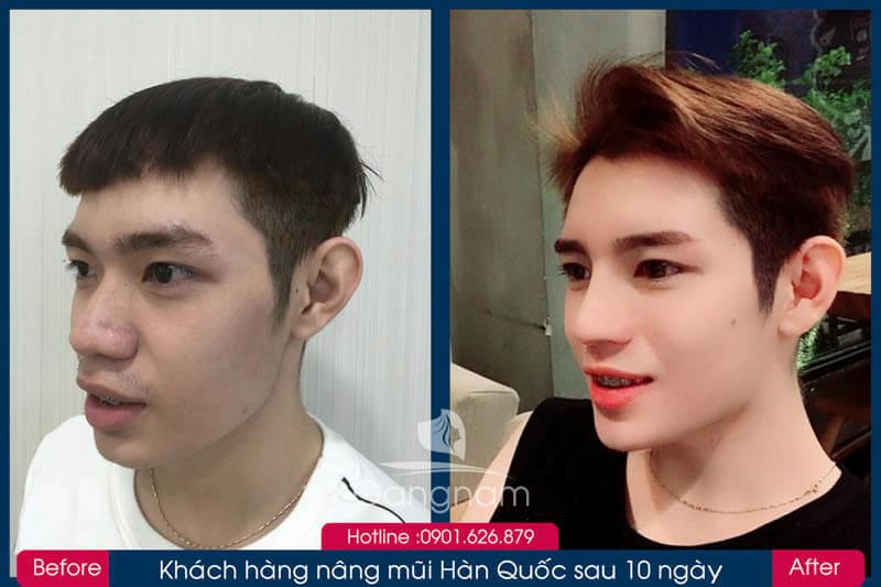 Hình ảnh khách hàng thẩm mỹ mũi tại Gangwhoo 23