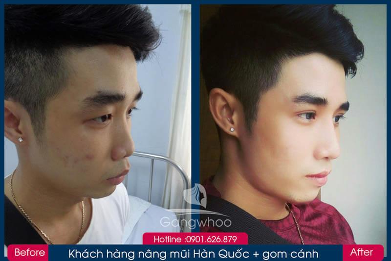 Hình ảnh khách hàng thẩm mỹ mũi tại Gangwhoo 25
