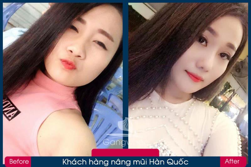 Hình ảnh khách hàng thẩm mỹ mũi tại Gangwhoo 26