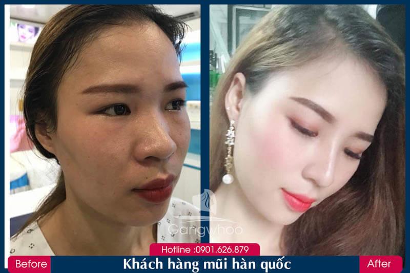 Hình ảnh khách hàng thẩm mỹ mũi tại Gangwhoo 29