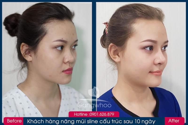 Hình ảnh khách hàng thẩm mỹ mũi tại Gangwhoo 3