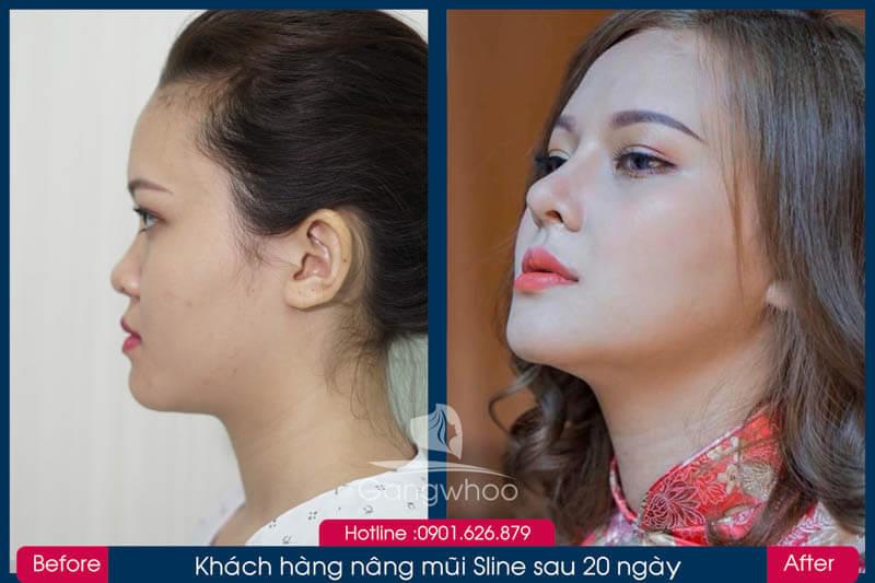 Hình ảnh khách hàng thẩm mỹ mũi tại Gangwhoo 1