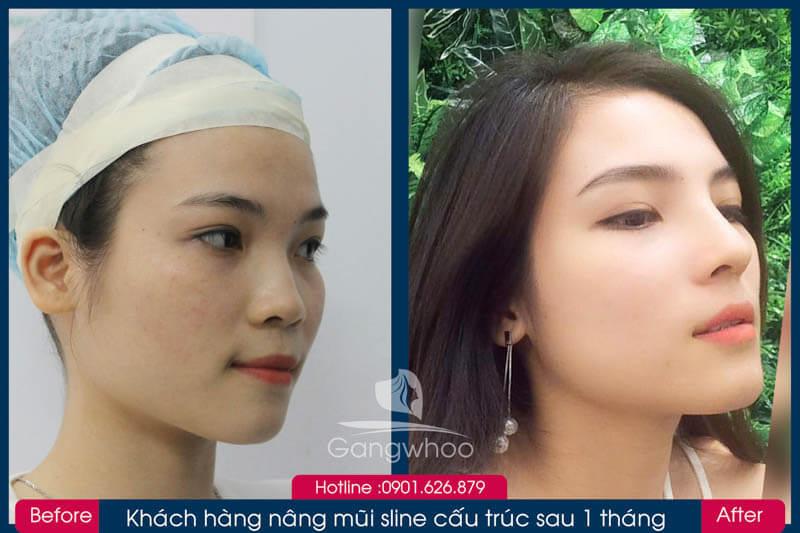 Hình ảnh khách hàng thẩm mỹ mũi tại Gangwhoo 13