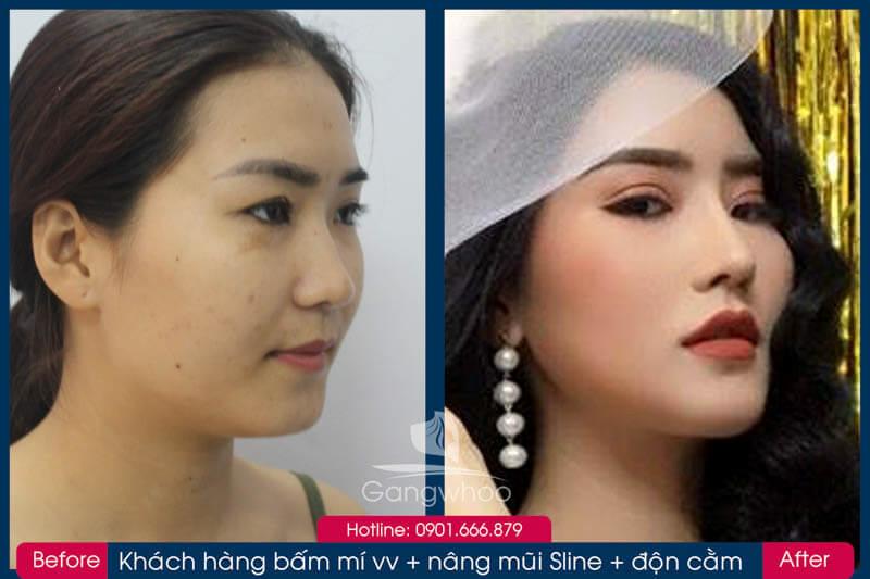 Hình ảnh khách hàng thẩm mỹ mũi tại Gangwhoo 8