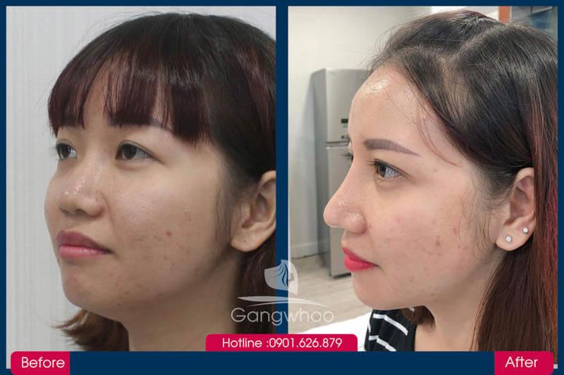 Hình ảnh khách hàng thẩm mỹ mũi tại Gangwhoo 12