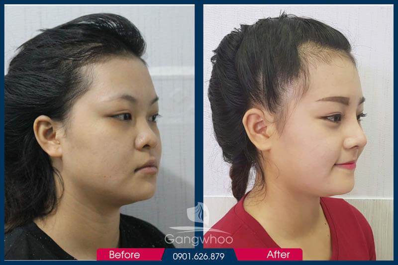 Hình ảnh khách hàng thẩm mỹ mũi tại Gangwhoo 9