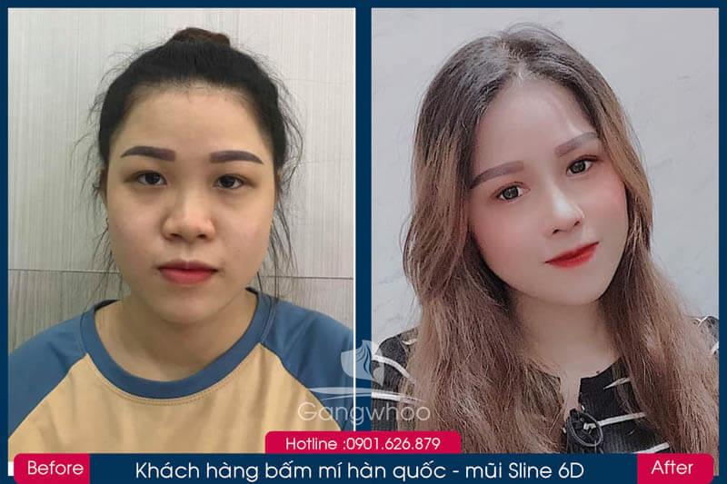 Hình ảnh khách hàng thẩm mỹ mũi tại Gangwhoo 6