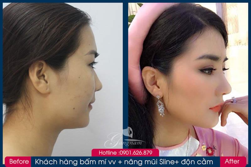 Hình ảnh khách hàng thẩm mỹ mũi tại Gangwhoo 7
