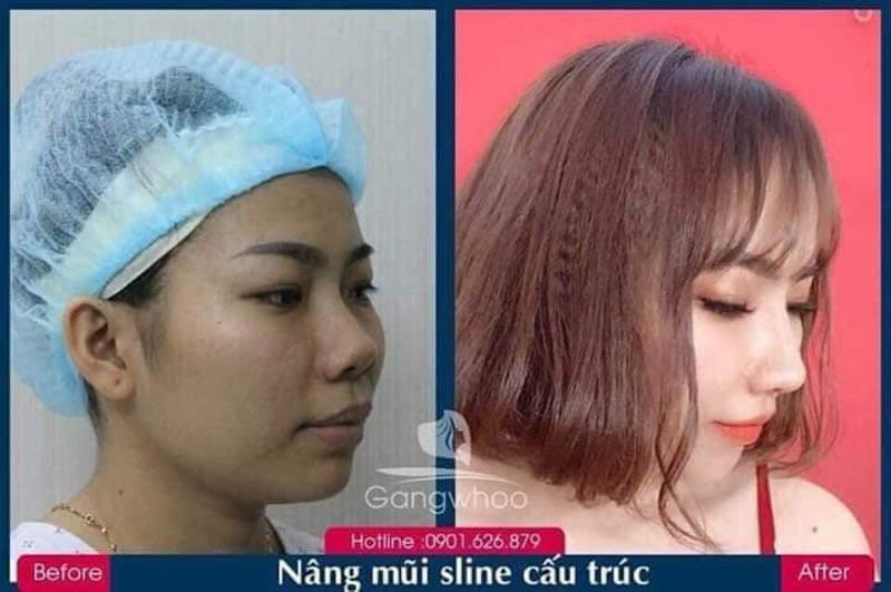 Hình ảnh khách hàng thẩm mỹ mũi tại Gangwhoo 10