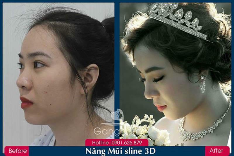 Hình ảnh khách hàng thẩm mỹ mũi tại Gangwhoo 15