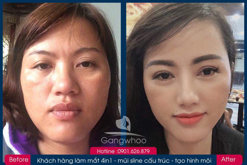 Hình ảnh khách hàng thẩm mỹ mũi tại Gangwhoo 20