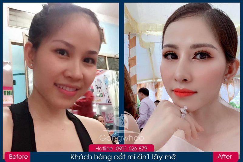 Hình ảnh khách hàng thẩm mỹ mũi tại Gangwhoo 21
