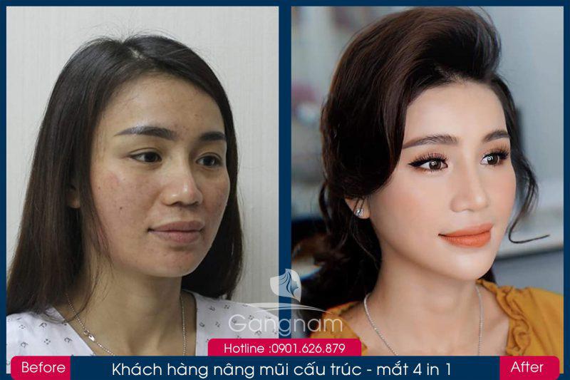 Hình ảnh khách hàng thẩm mỹ mũi tại Gangwhoo 19