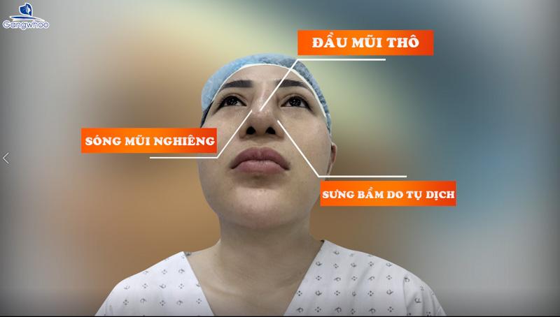 """Gangwhoo """"Giải Cứu"""" Mũi Hỏng Cho Cô Gái Mất Niềm Tin Vào Phẫu Thuật Thẩm Mỹ 2"""