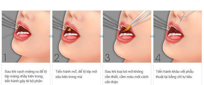Lấy mỡ má nội soi cho khuôn mặt chuẩn V-line thần thánh 3