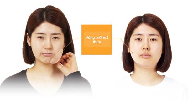 Lấy mỡ má nội soi cho khuôn mặt chuẩn V-line thần thánh 1