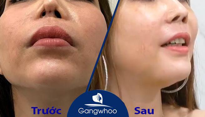 Chị Ngọc và chiếc mũi xinh đẹp sau khi được bác sĩ Phùng Mạnh Cường chỉnh sửa tại Thẩm mỹ viện Gangwhoo