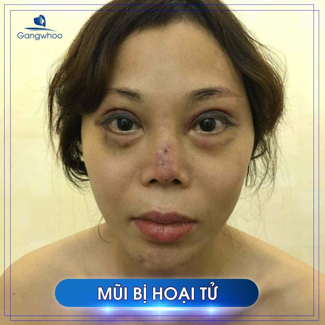 khách hàng sửa mũi hỏng vì mũi bị hoại tử