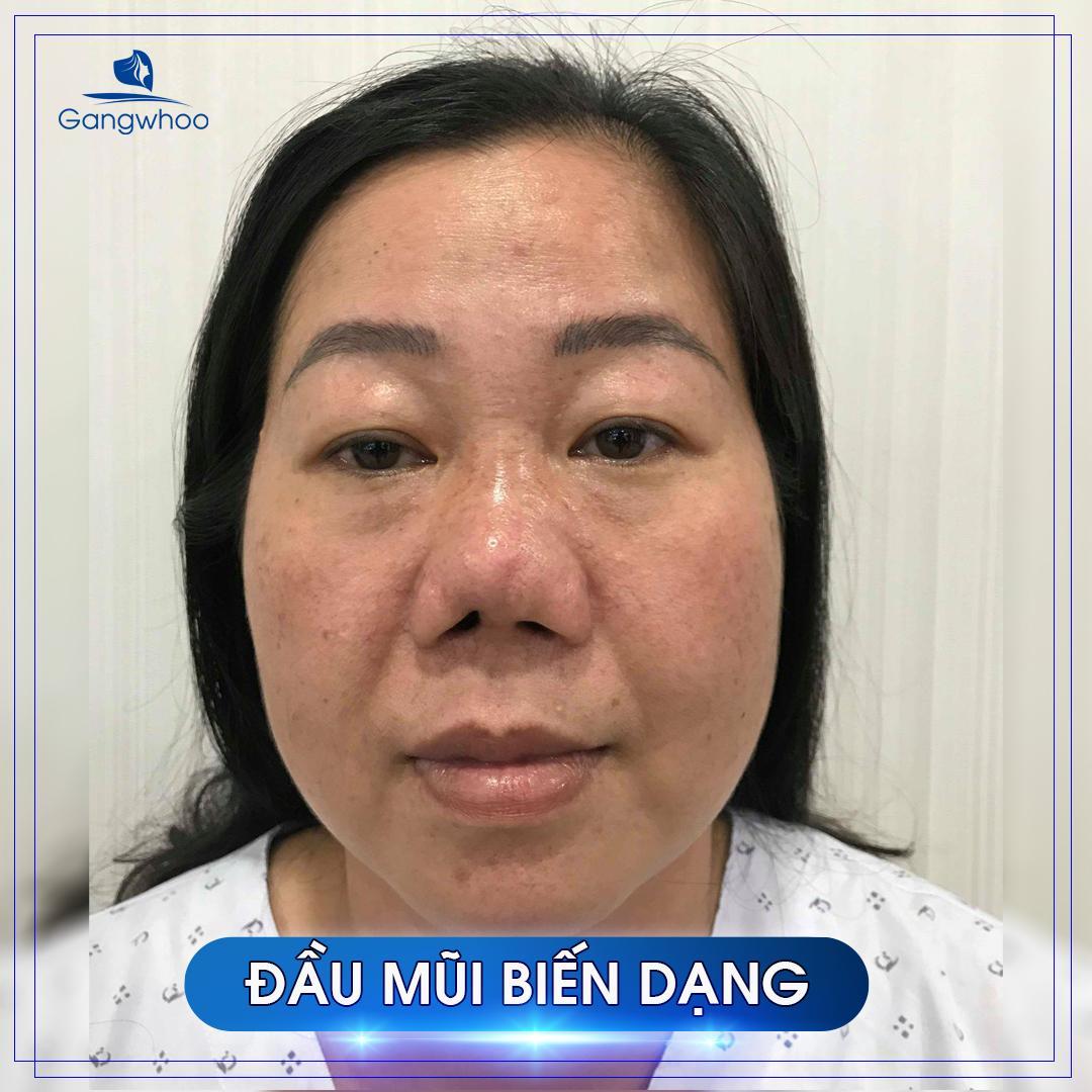 khách hàng sửa mũi hỏng vì đầu mũi biến dạng